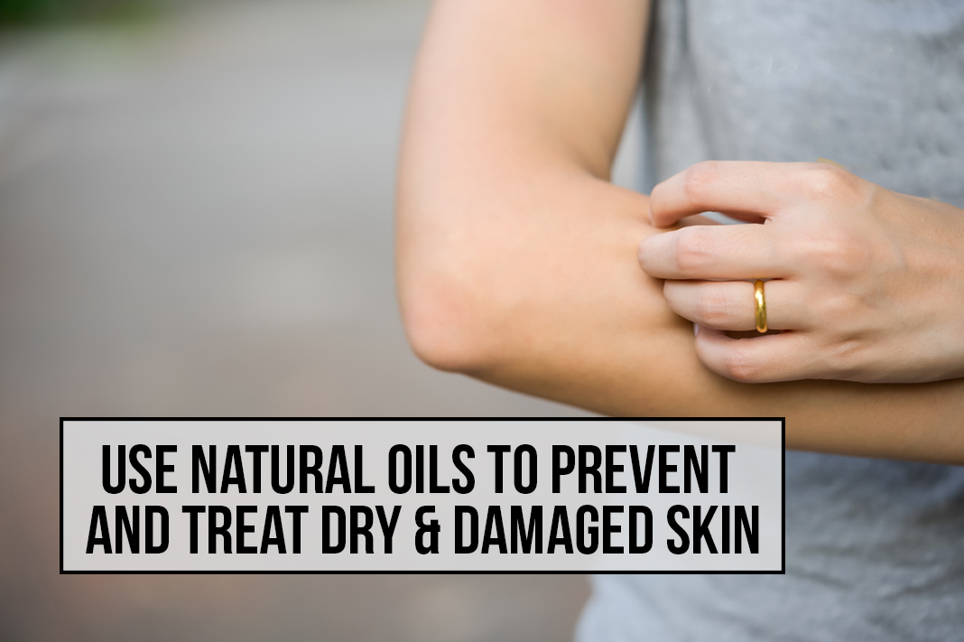 Use Natural Oils to Prevent and Treat Dry Damaged Skin