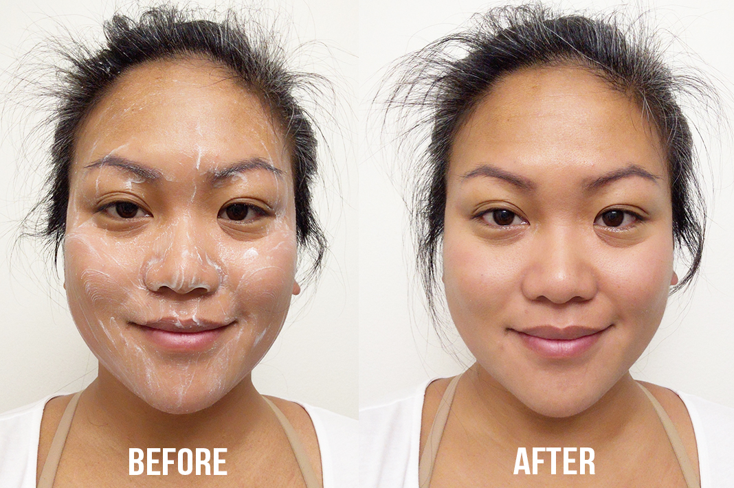 ASDM Micro salicylic cleanser before and after | Schimiggy Reviews