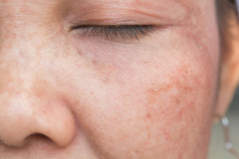 skin hyperpigmentation causes uneven skin color