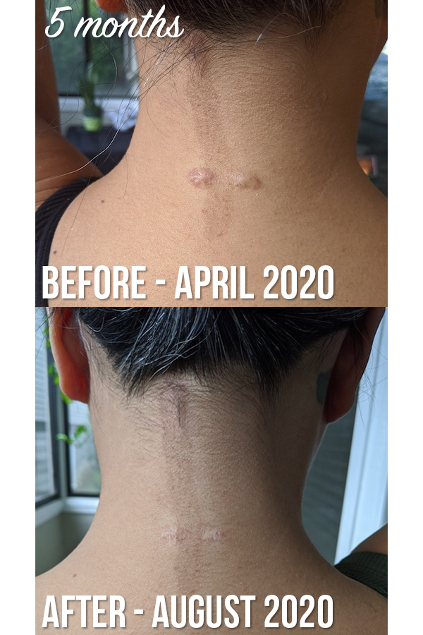keloid scar steroid injection before and after
