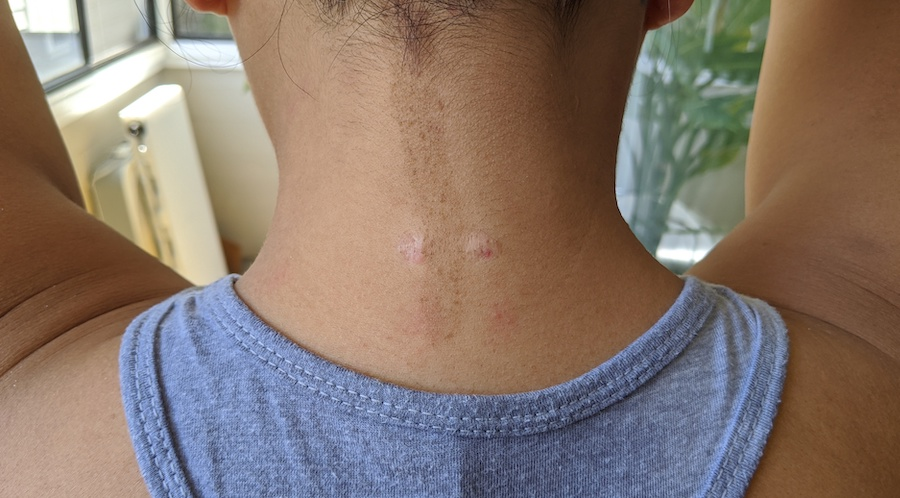 neck keloid scars after third steroid injection