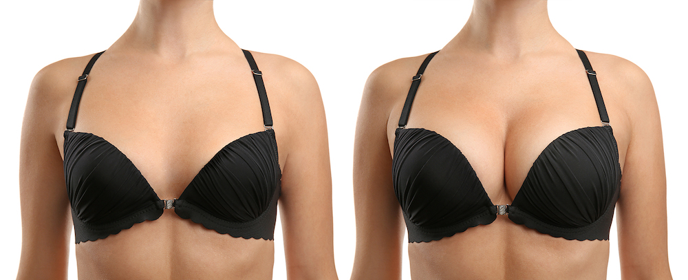 breast augmentation before and after boob job