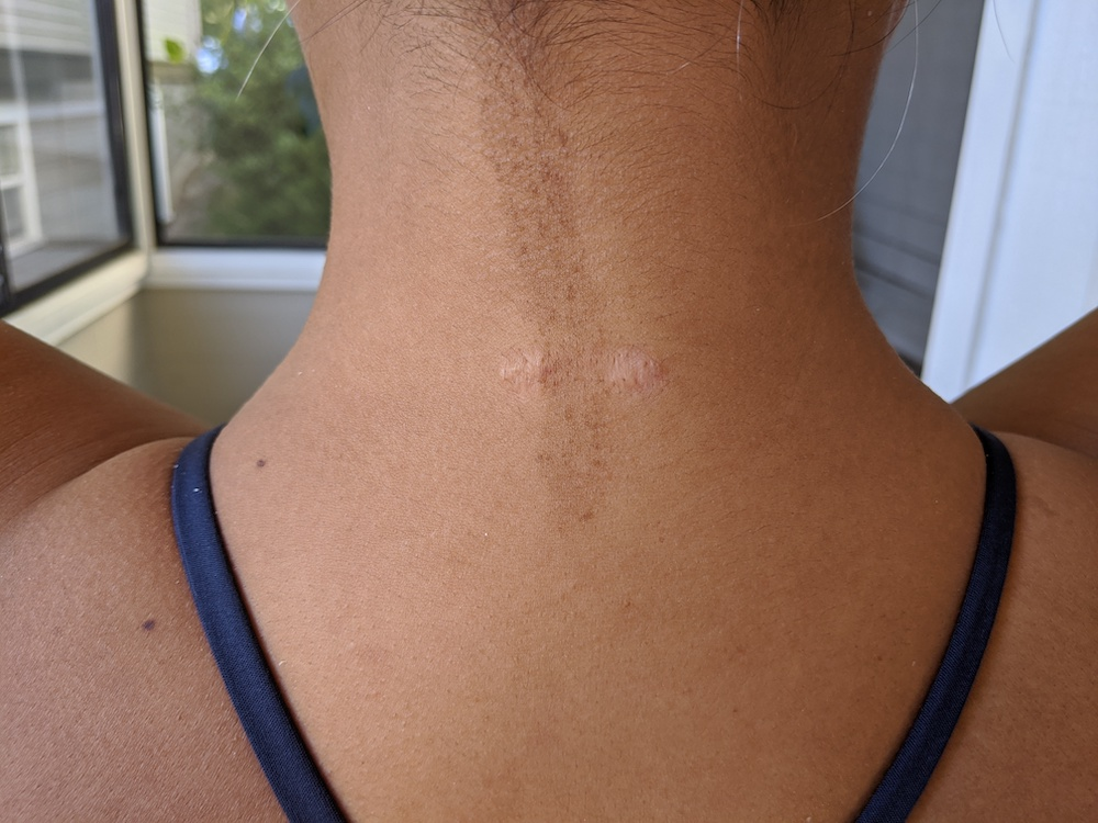 keloid scar steroid treatment 4th injection nape of neck scars